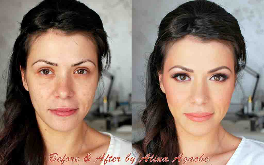 Before and After - by Alina Agache